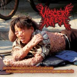 VISCERA INFEST 再入荷!!! : record ...