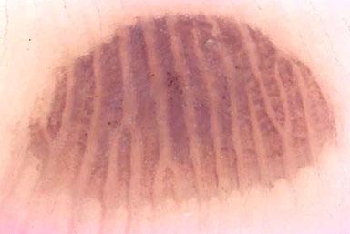 acral melanoma #10