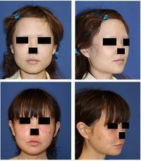 下顎骨スティック骨切術、下顎骨外板切除術 - 美容外科医のモノローグ