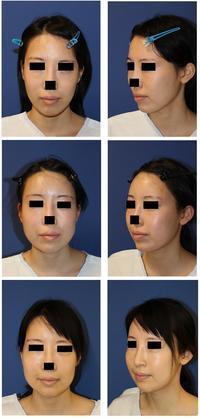 ミッドフェイスリフト、頬脂肪移植、額脂肪移植、 (途中他院中顔面短縮術) - 美容外科医のモノローグ