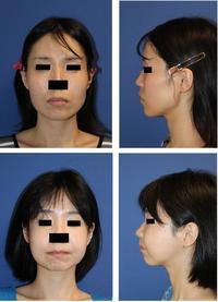 中顔面短縮術(ルフォーⅠ型骨切術+下顎矢状分割術) ,頬骨骨切術、エラ削り,外板切除 術後2か月 - 美容外科医のモノローグ