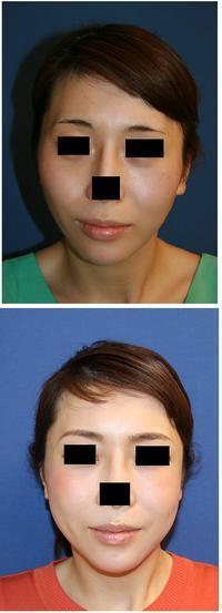 頬骨再構築法 術後約7年 - 美容外科医のモノローグ