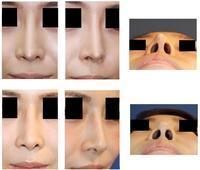 他院鼻尖部軟骨移植術術後  婦人科組織を用いての鼻先修正術術後約5年半 - 美容外科医のモノローグ
