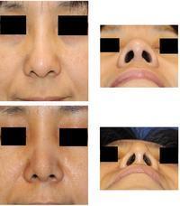 レーザー鼻尖縮小術 術後約1週間 - 美容外科医のモノローグ
