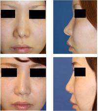 前担当医による鼻尖縮小術後鼻変形修正 および 鼻尖部軟骨除去 ,鼻先婦人科軟部組織移植 - 美容外科医のモノローグ
