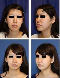 中顔面短縮術(ルフォーⅠ型骨切術+下顎矢状分割術) , BNLS注射 - 美容外科医のモノローグ