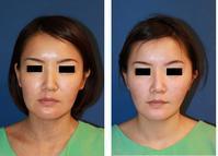 ミラクルリフト、口角拳上(内側法)、鼻翼基部プロテーゼ - 美容外科医のモノローグ