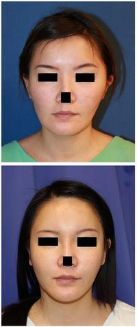 頬骨再構築  術後 約5年 - 美容外科医のモノローグ
