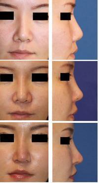 鼻中隔延長術 術後5年 、 再度鼻中隔延長術(肋軟骨使用)、小鼻肉厚減幅術、鼻孔縁拳上術 - 美容外科医のモノローグ