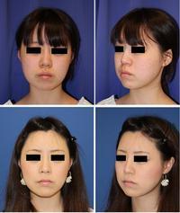 上口唇縮小術 ,  鼻翼基部アパタイト形成術 - 美容外科医のモノローグ