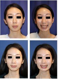 ガミースマイル修正 目的 LeFortⅠ型骨切術 - 美容外科医のモノローグ