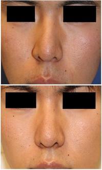 骨切 斜鼻修正術  , 人中短縮術 (クローズ法)  術後約1年9か月 - 美容外科医のモノローグ
