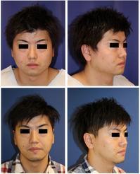 下顎骨 エラ骨切(下顎角骨切り) 外板骨外し - 美容外科医のモノローグ