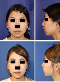 頬骨v字骨切術、 顎先骨切前方移動術、エラ骨骨切術 - 美容外科医のモノローグ