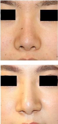 レーザー鼻尖縮小術、 鼻孔縁拳上術、 小鼻肉厚減幅術 - 美容外科医のモノローグ