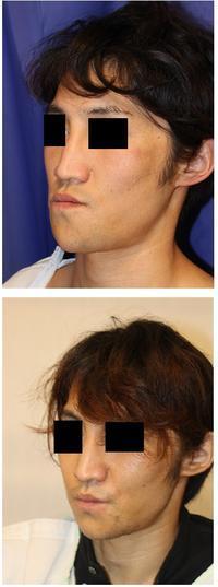 中顔面短縮術(LeFortⅠ型骨切術+下顎矢状分割(SSRO),顎先骨切前方移動術 - 美容外科医のモノローグ