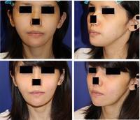 他院Vライン形成術後修正、 エラ形成 - 美容外科医のモノローグ