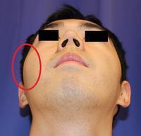 右頬骨縮小術、 右鼻根縮小術 - 美容外科医のモノローグ