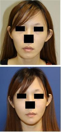 頬骨V字骨切術、下顎骨スティック骨切+顎先T字骨切術、アキュスカルプ+ミントリフト - 美容外科医のモノローグ