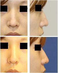 アップノーズ形成術、小鼻縮小術 - 美容外科医のモノローグ