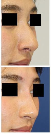 鼻筋 クレヴェル(ヒアルロン酸)注射 - 美容外科医のモノローグ