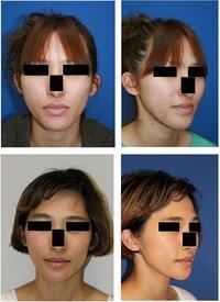 顎骨骨切術 術後約6年半年 - 美容外科医のモノローグ