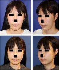 他院ルフォー(LeFort)骨切術、下顎IVRO骨切術、頬骨骨切術、オトガイ形成術   再手術 - 美容外科医のモノローグ