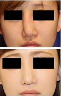 斜鼻修正 - 美容外科医のモノローグ