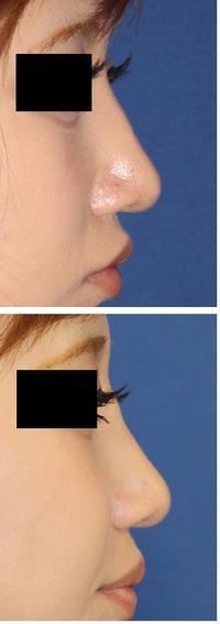 鼻プロテーゼ抜去後 同日PPP、PRP留置術 - 美容外科医のモノローグ