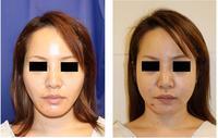 下顎骨スティック骨切術 術後約5か月 - 美容外科医のモノローグ