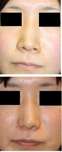 鼻尖縮小術クローズ法、小鼻縮小術 術後約8年10か月 - 美容外科医のモノローグ