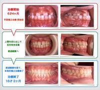 Mちゃんの治療完了!! うれしい〜〜 (*^_^*) - 木更津のありしま矯正歯科*院長のブログです