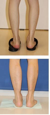 ふくらはぎインプラント180cc   術後約半年再診 - 美容外科医のモノローグ