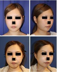 頬骨V字骨切術 、 エラ骨骨切術 術後約半年 - 美容外科医のモノローグ