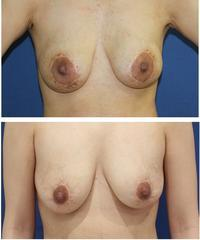 他院乳輪縮小術 術後修正術、 他院乳房インプラント抜去後脂肪移植 術後2年3か月 - 美容外科医のモノローグ