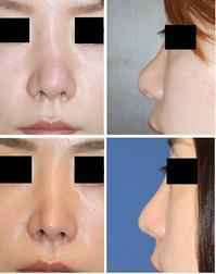肋軟骨による鼻中隔延長術および鼻尖縮小術、大陰唇組織による隆鼻術 - 美容外科医のモノローグ
