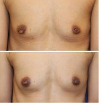 乳頭縮小形成術、左陥没乳頭修正術、モントゴメリー腺除去術 - 美容外科医のモノローグ