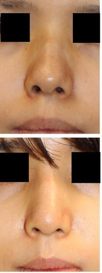 他院鼻尖縮小術修正: 鼻孔縁延長術、鼻尖部軟骨移植術、鼻先自己組織(婦人科軟部組織)移植術 - 美容外科医のモノローグ