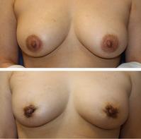 他院乳輪縮小術後 修正術 - 美容外科医のモノローグ