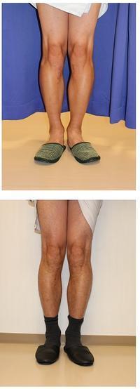 O脚矯正    術後抜釘術 - 美容外科医のモノローグ