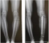 ISKD 脚延長術 (左下腿) - 美容外科医のモノローグ