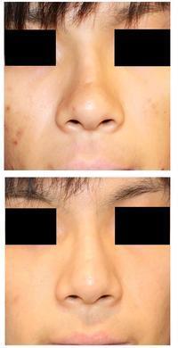 レーザー鼻尖縮小術 、 レーザー小鼻縮小術 術後半年 - 美容外科医のモノローグ
