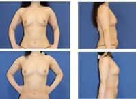 脂肪移植豊胸 術後約半年再診 - 美容外科医のモノローグ