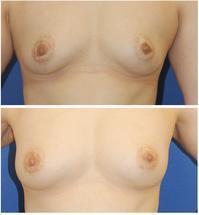 自家ピーリング後 乳輪白斑 に対するレーザー治療  、 乳房脂肪移植 - 美容外科医のモノローグ