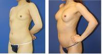 脂肪移植豊胸 最終手術より約2年後 - 美容外科医のモノローグ