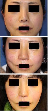 他院鼻孔縁術後 鼻孔縁延長  術後2年 - 美容外科医のモノローグ