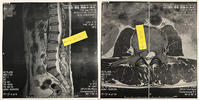 L2/3腰椎椎間板ヘルニア - リンマンブルース (エフのため息)