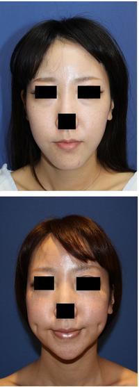 顎先骨切術、 えくぼ形成術 術後約1年半 - 美容外科医のモノローグ