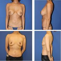 他院乳房プロテーゼ抜去、 乳房乳輪縮小術 - 美容外科医のモノローグ
