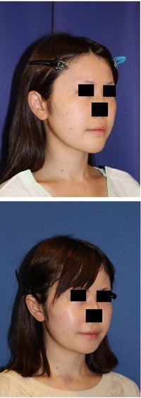 顎先骨切術 術後約半年 - 美容外科医のモノローグ